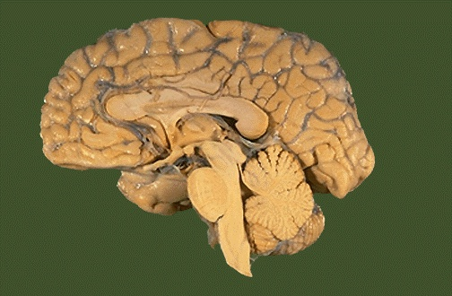Navigating Neuroanatomy – Mastering Clinical Anatomy